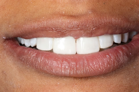 Composite Bonding Before After - Full Upper/Lower arch teeth composite veneer