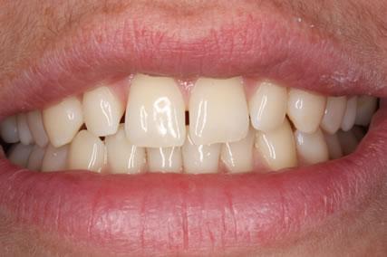Lumineers Before After - Upper teeth gap