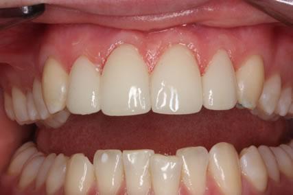 Lumineers Before After - Top teeth gap