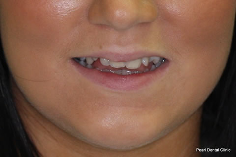 Tooth Crowding Before After - Upper front teeth