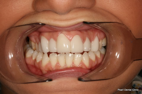 Tooth Crowding Before After- Full arch upper front teeth lumineers