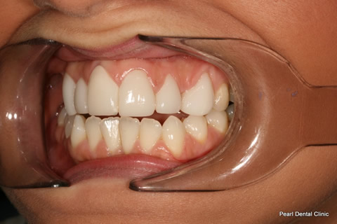 Tooth Crowding Before After- Left full arch upper front teeth lumineers