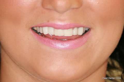 Tooth Crowding Before After- Upper front teeth lumineers