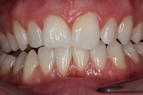 Chipped Teeth Before After - Upper front teeth
