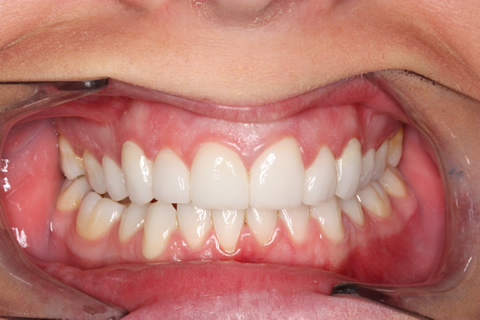 Chipped Teeth Before After - Upper front teeth lumineers