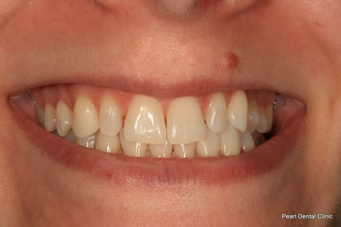 Teeth Gap Before After - Upper/lower teeth