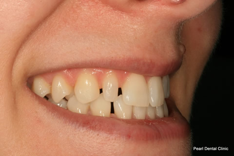 Teeth Gap Before After - Right upper/lower teeth