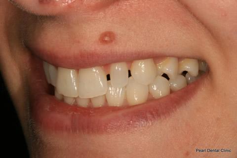 Teeth Gap Before After - Left upper/lower teeth
