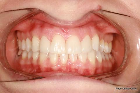 Teeth Gap Before After - Full arch upper/lower teeth lumineers