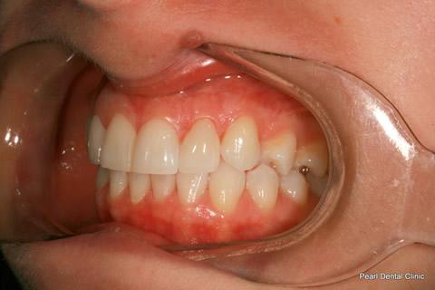 Teeth Gap Before After - Left full arch upper/lower teeth lumineers
