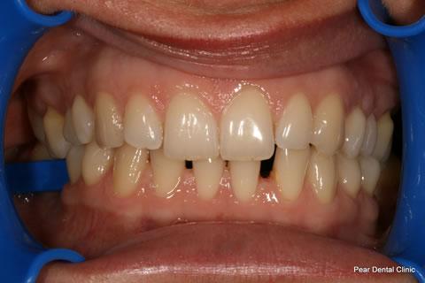 Teeth Gap Before After - Full Upper/lower arch teeth