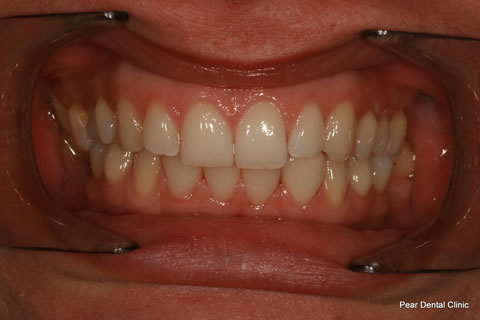 Teeth Gap Before After - Upper/lower teeth lumineers