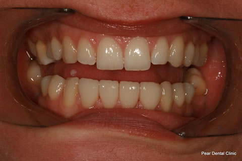 Teeth Gap Before After - Top/bottom teeth lumineers