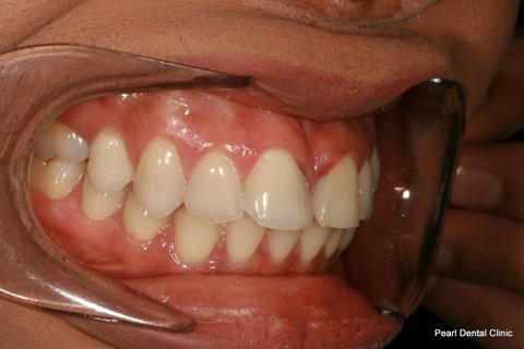 Front Teeth Gap Before After - Right upper Teeth