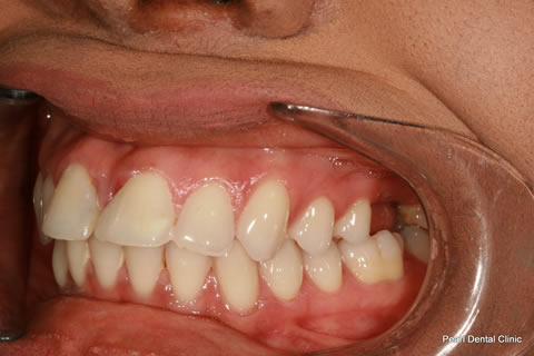 Front Teeth Gap Before After - Left upper Teeth