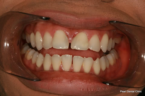 Front Teeth Gap Before After - Upper/lower Teeth
