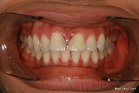 Front Teeth Gap Before After - Upper/lower Teeth