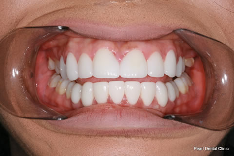 Front Teeth Gap Before After - Full arch teeth lumineers
