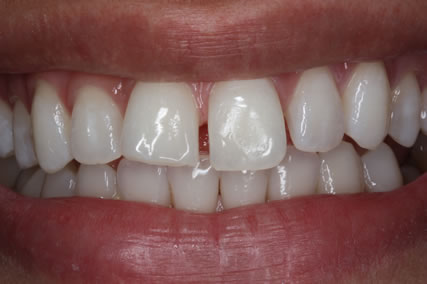 Upper Teeth Gap Before After - Front upper teeth