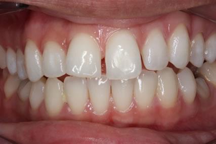 Upper Teeth Gap Before After - Front upper teeth