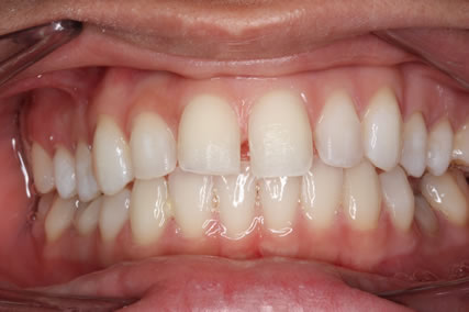 Upper Teeth Gap Before After - Full arch teeth