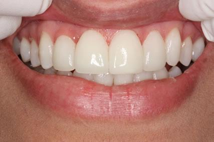 Upper Teeth Gap Before After - Front upper teeth lumineers