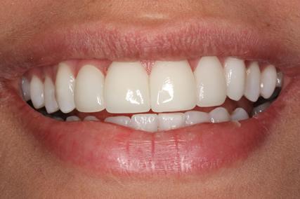 Upper Teeth Gap Before After - Front top teeth lumineers