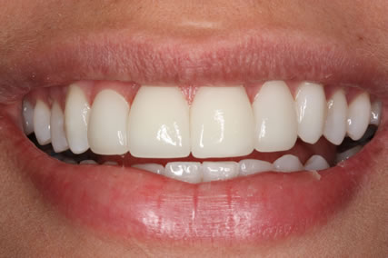 Upper Teeth Gap Before After - Front upper teeth lumineers