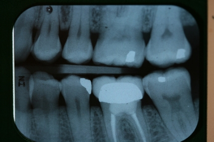 Before After Failed Molar Root Canal Treatment - Failed tooth root filling