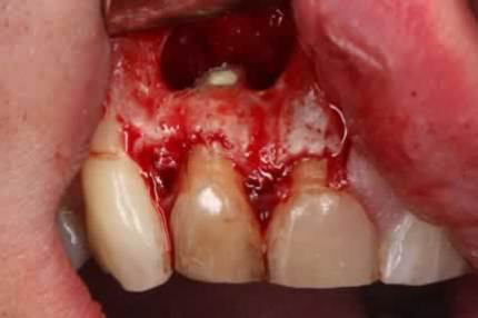 Before After Root Canal Treatment/ Apicectomy - Sealing the root by MTA root filling