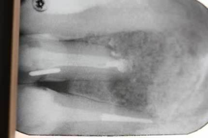 Before After Root Canal Treatment/ Apicectomy - Root filling, apicectomy, bone craft X-ray