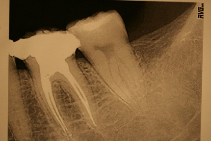 Before After Failed Molar Root Canal Treatment - Re-root filling after copious irrigation/ cleaning