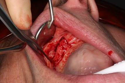 Before After Sinus Lift Surgery - Sinus floor exposed bone
