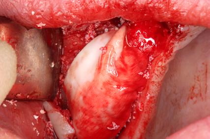 Before After Sinus Lift Surgery - Separating gum flap bone granules