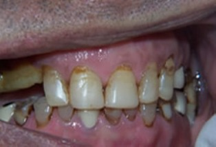 Mouth Rehabilitation Before After - Front full arch worn teeth
