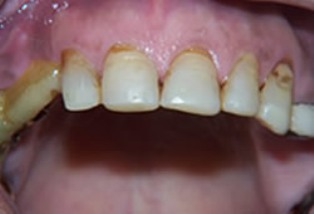Mouth Rehabilitation Before After - Top arch worn teeth