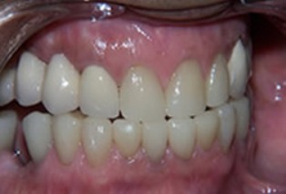 Mouth Rehabilitation Before After - Full arch with ceramic crowns/bridges