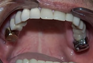 Mouth Rehabilitation Before After - Top arch view with ceramic crowns/bridges