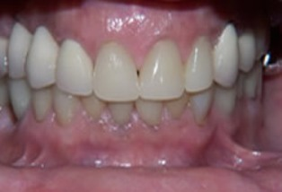 Mouth Rehabilitation Before After - Full arch view with ceramic crowns/bridges
