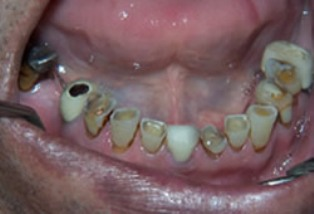 Mouth Rehabilitation Before After - Bottom arch missing/worn teeth