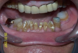 Full Mouth Rehabilitation Before After - Full arch worn/neglected teeth