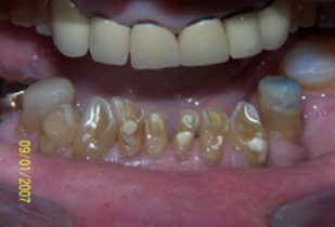 Full Mouth Rehabilitation Before After - Top/Bottom teeth worn/neglected teeth