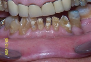 Full Mouth Rehabilitation Before After - Lower/Upper teeth worn/neglected teeth