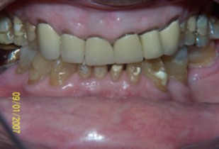 Full Mouth Rehabilitation Before After - Upper/Lower teeth worn/neglected teeth