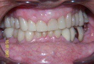 Full Mouth Rehabilitation Before After - Full arch white fillings, veneers, crowns, bridges