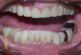 Full Mouth Rehabilitation Before After - Full top/bottom arch teeth with white fillings, veneers, crowns, bridges