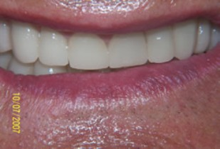 Full Mouth Rehabilitation Before After - Full smile