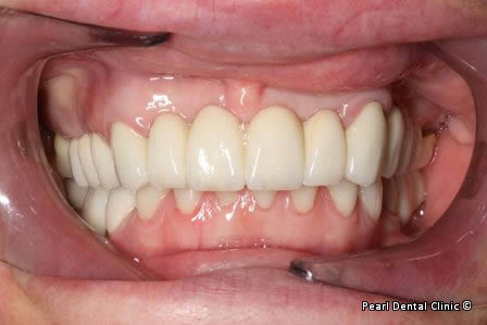 Mouth Rehabilitation Before After - Full arch