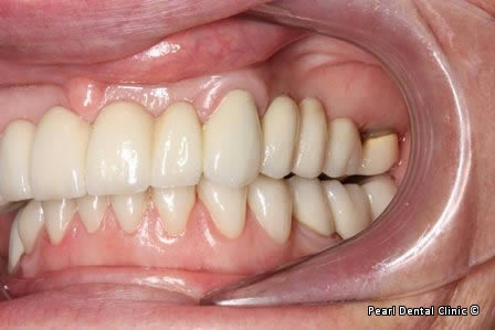 Mouth Rehabilitation Before After - Left side full arch