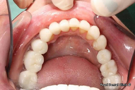 Mouth Rehabilitation Before After - Bottom arch inner view